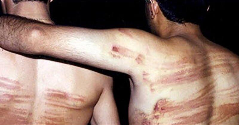 Amnesty-International-Calls-out-Iran-Regime-Use-Violent Punishments