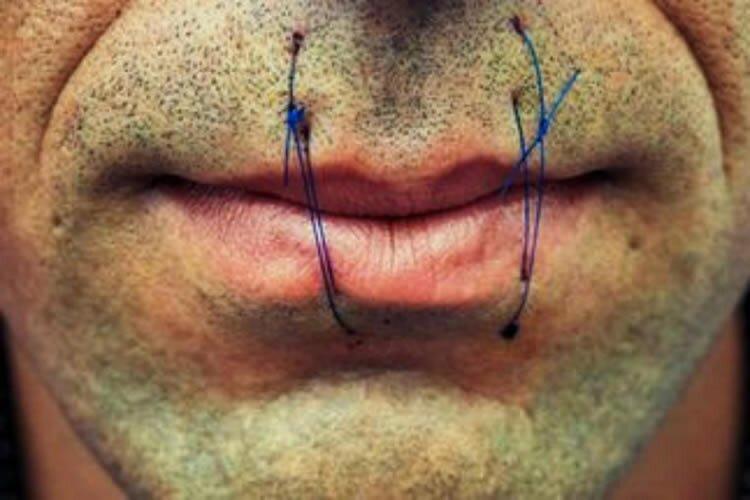prisoner sew lips