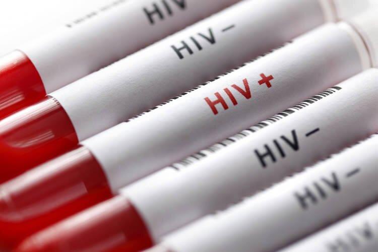 Iran's HIV problem